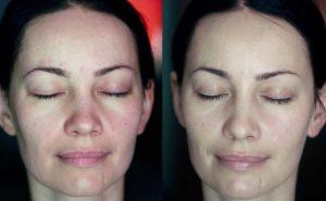 Очищение кожи до и после