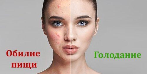 Чистая кожа при голодании