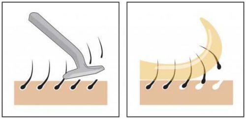 Преимущество депиляции перед бритьем