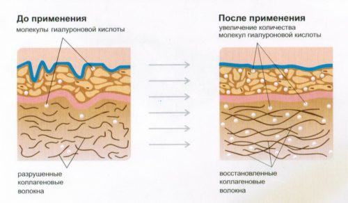 Восстановление коллагеновых волокон