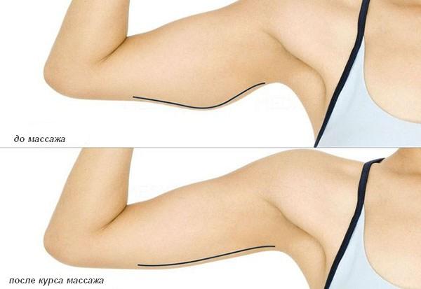Эффективность массажа рук
