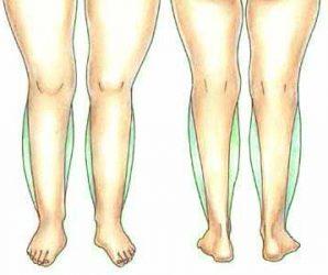 Способы похудения икр