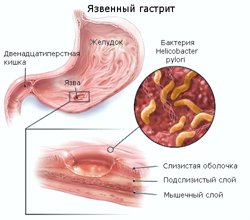 Схема язвенного гастрита желудка