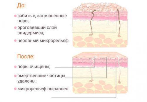 Эффект пилинга для кожи