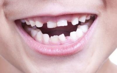 молочные зубы меняют на постоянные