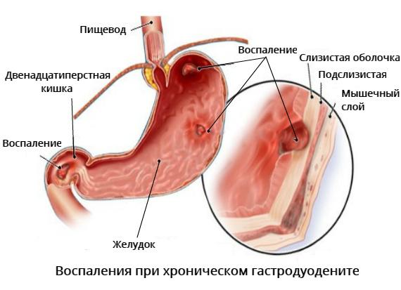 Что такое хронический гастродуоденит и как его лечить