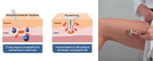 Механизм действия мезороллера
