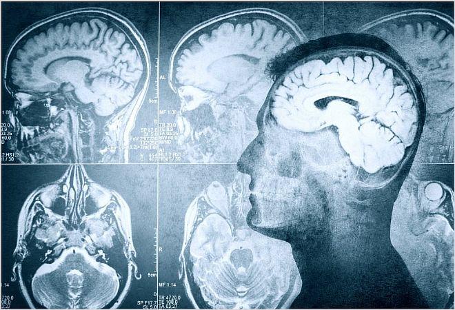 Почему возникает отек и набухание головного мозга