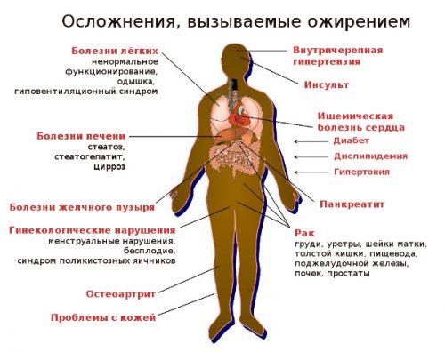 Осложнения при ожирении