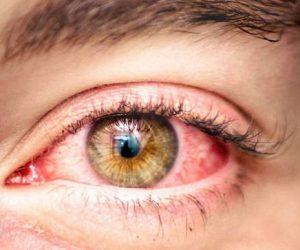 Аллергия глаз