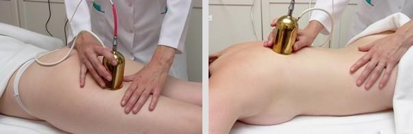 Баролазерный массаж