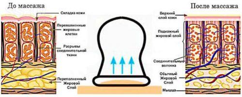Польза баночного массажа при целлюлите