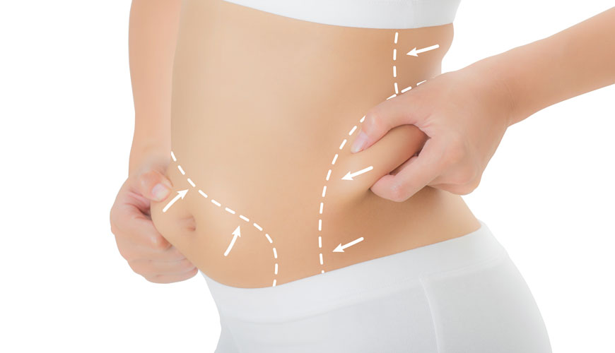 Избыточные жировые отложения