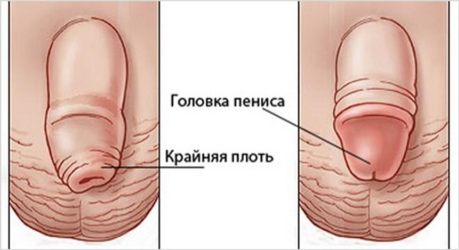 Что делать, если опухла головка и крайняя плоть