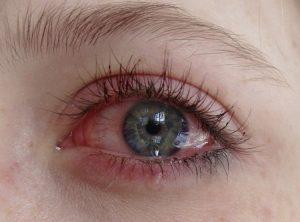 Аллергия на ламинирование ресниц
