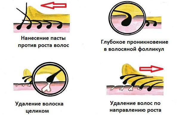 Схема проведения шугаринга