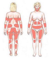 Зоны жировых отложений