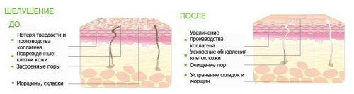 Схема обновления кожи