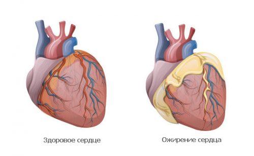 Проблема ожирения сердца