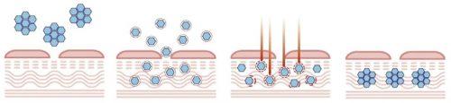 Действие озонтореапии на кожу