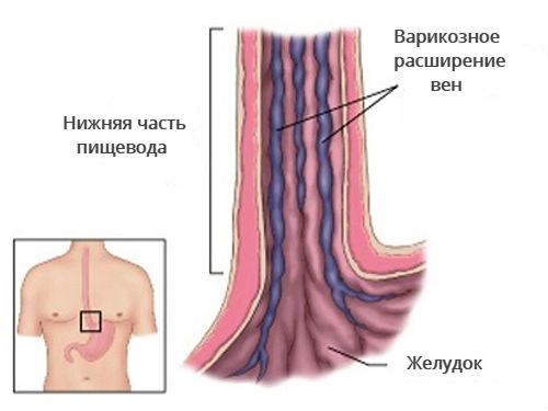 Схема варикоза в пищеводе