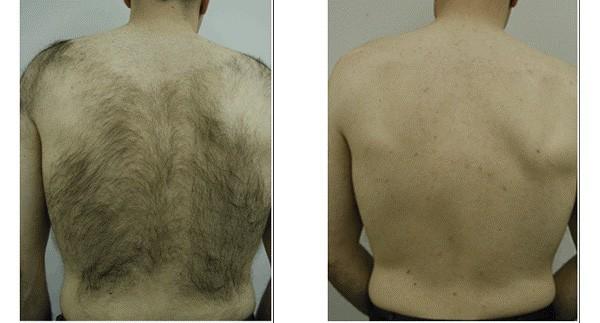До и после удаления волос