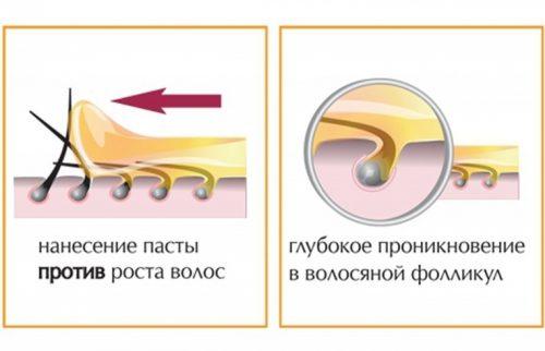Процесс удаления волос