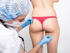 Обращение к врачу при целлюлите