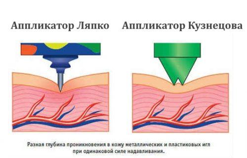 Иглы аппликатора Ляпко и Кузнецова