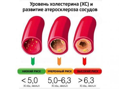 Уровни холестерина