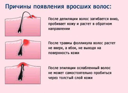 Причины вросших волос