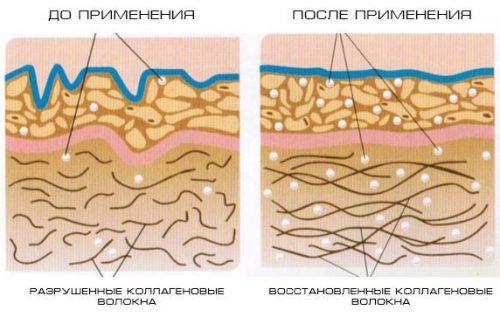 Восстановление тонуса кожи