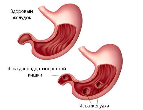 Язвы желудка и 12-перстной кишки