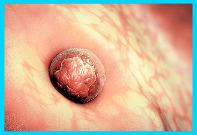 графика имплантации эмбриона человека в стенку матки