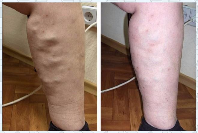 Лечение варикозного расширения ног