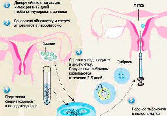 Как берут яйцеклетку у женщины: подготовка и пункция
