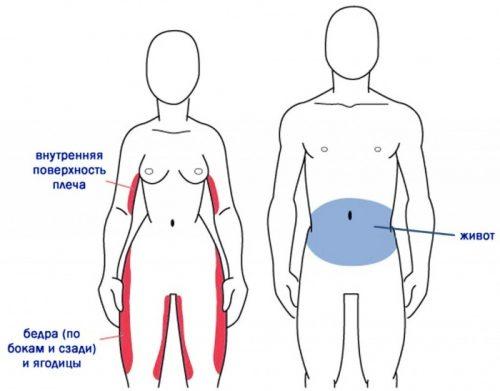 Типичные места возникновения целлюлита у мужчин и женщин