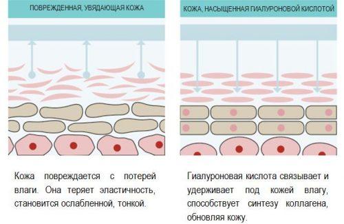 Действие гиалуроновой кислоты