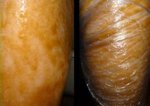 Нанесение меда и обертывание пленкой