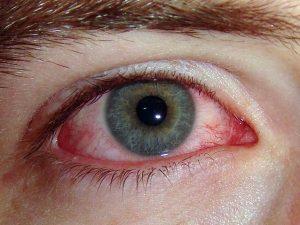 Аллергия на полынь