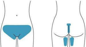 Виды шугаринга зоны бикини и особенности проведения процедуры
