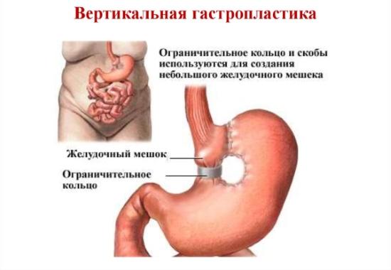 Вертикальная гастропластика