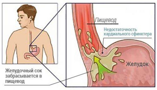 Недостаточность кардии желудка