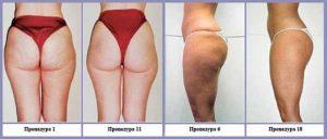 Улучшение кожи в зависимости от количества процедур