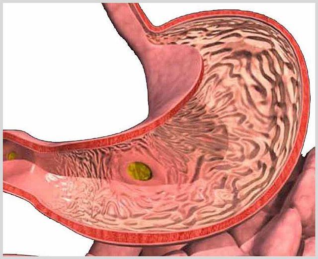Что такое отек желудка и почему он возникает