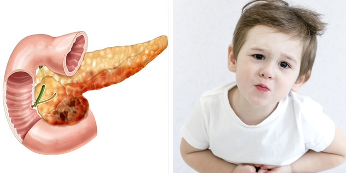 Заболеваниях поджелудочной железы у ребенка