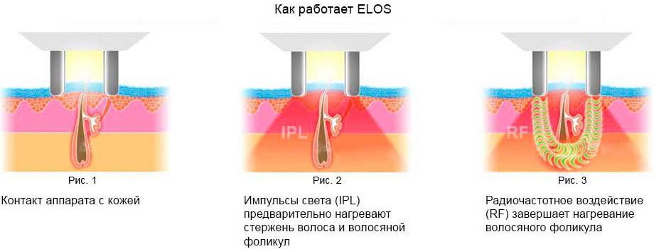 Совмещение ELOS, IPL и RF