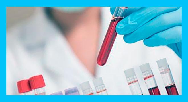лаборант держит в руке пробирку с кровью для анализа на ЛГ и ФСГ