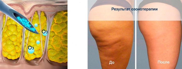 Озонотерапия против целлюлита