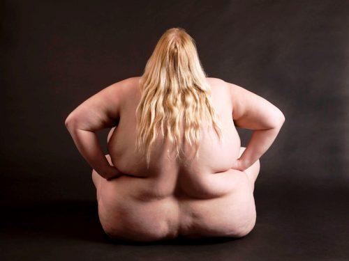 Тяжелое или морбидное ожирение